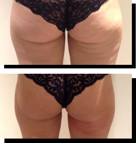 Back of Thigh Toning Before After copy